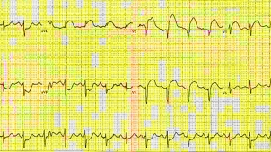 800px-12_lead_ekg_st_elevation_tracing_only_2.jpg